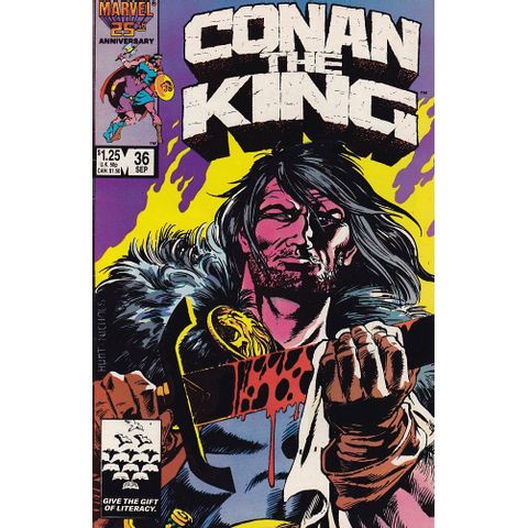 -Conan---the-King---36